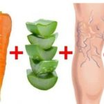 Aloe Vera and Carrots for most effective cure for Varicose Veins